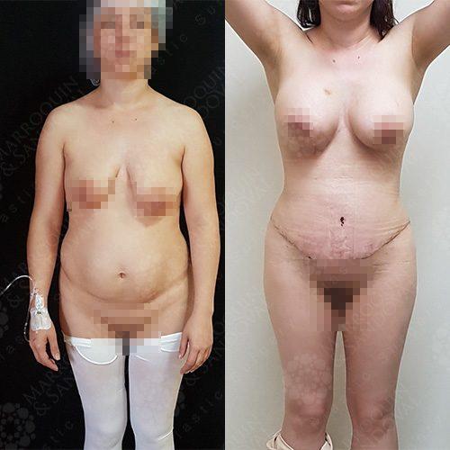 breastcase3_1