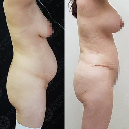 breastcase3_2